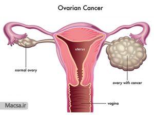 سرطان تخمدان